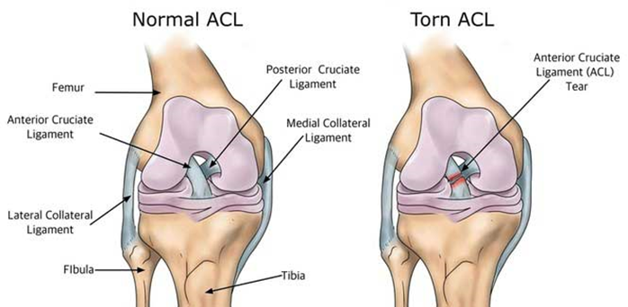 Why do I have to wait so long after my ACL reconstruction? - Back ...