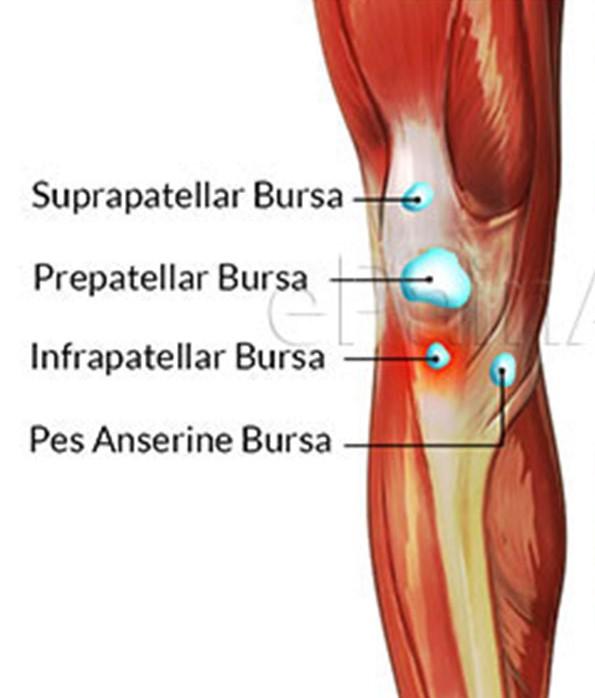Knee bursitis including housemaids knee